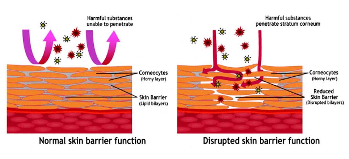 Eczema Skin Microbiome Immune-Skin